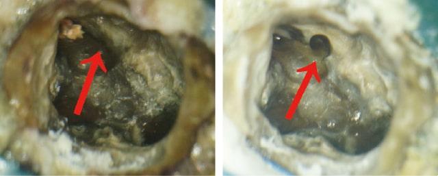 再治療:見落とされた根管の写真